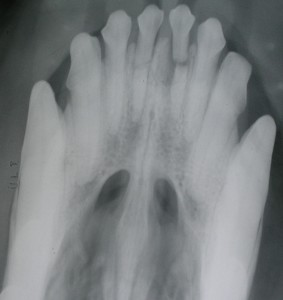 חני רצקין - צילום רנטגן של שיניים שבורות